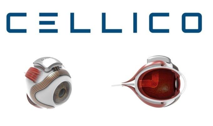 '전자눈' 개발 셀리코, 퓨처플레이 등 시드투자 유치