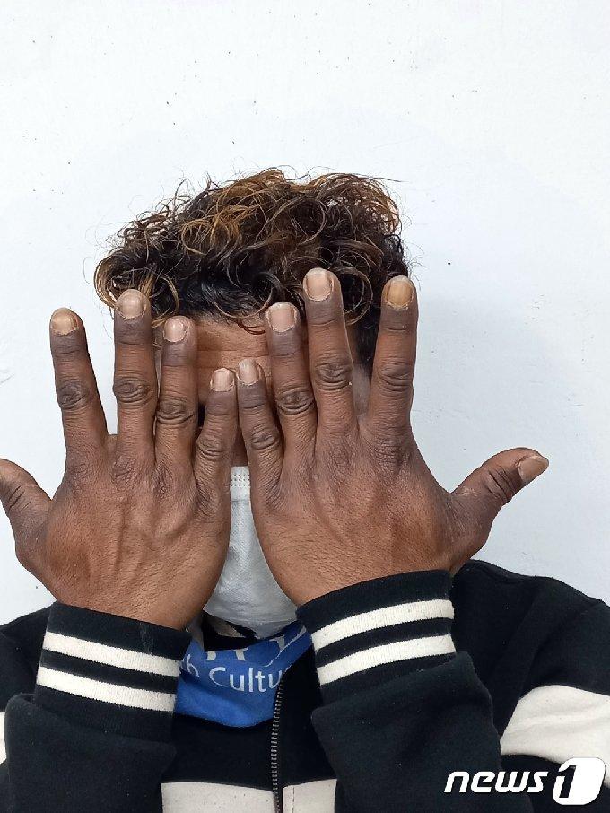 동티모르에서 건너와 한국의 돼지농장에서 9년 동안 일한 마리오씨(34)가 검게 그을린 자신이 손을 들어보이고 있다. © News1 박영래 기자