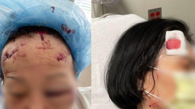 미국에서 주류 매장을 운영하는 한인 자매가 벽돌을 들고 침입한 남성에 폭행을 당하는 사건이 벌어졌다. /사진=고펀드미(GoFundMe) 홈페이지 캡처