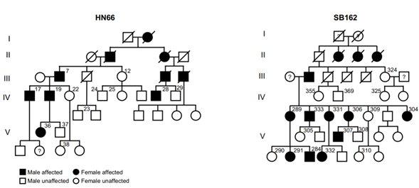 TMEM43 p.Arg372Ter 돌연변이가 우성 음성으로 유전 되는 중국 (HN66) 과 한국 (SB162) 가계도. 돌연변이를 가지고 있는 구성원은 진행성 청신경병증을 앓는다. /자료=IBS
