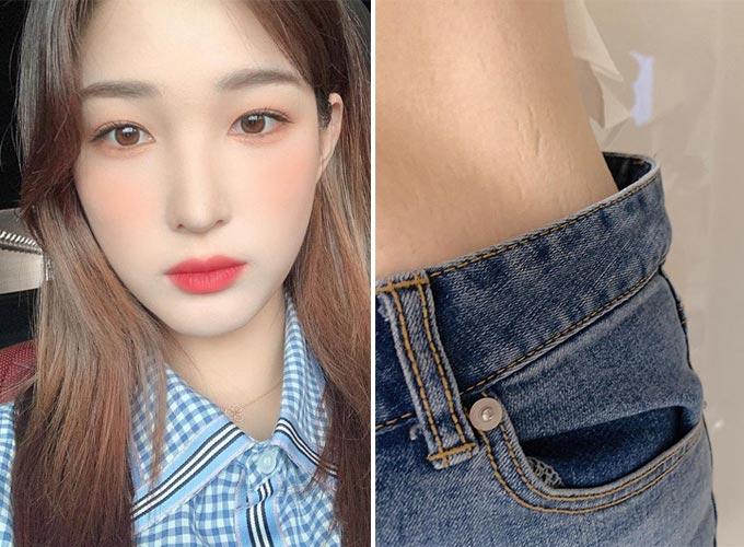 그룹 라붐 출신 율희(왼쪽)가 공개한 허리의 튼살 사진(오른쪽)./사진=율희 인스타그램