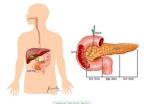 스티브 잡스·파바로티 앗아간 췌장암, 이 증상 나타나면…