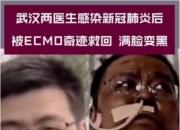 코로나 감염된 中우한의 의사, 뽀얗던 얼굴이 시커멓게…