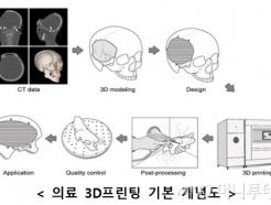 韓 의료용 3D 프린팅 모델링, 국제표준된다