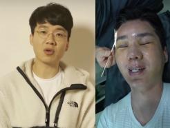 """'여혐 낙인' 유튜버 보겸, 8시간 성형…""""예전 얼굴 아예 없어졌다"""""""