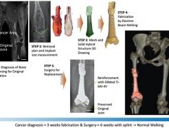 """""""멀쩡한 관절은 그대로""""…뼈암 절제 최소화 '3D 프린팅' 기술 개발"""