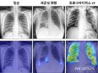 엑스레이 사진으로 코로나19 정확한 진단 가능하다